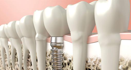 Veja o que é e como funciona a cirurgia de implante dentário